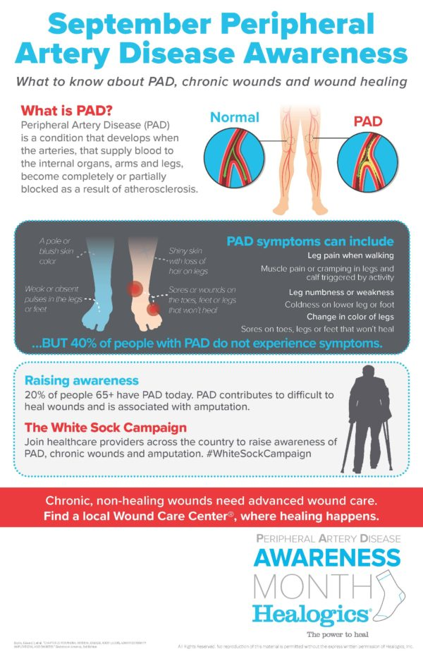Download Peripheral Artery Disease (PAD)