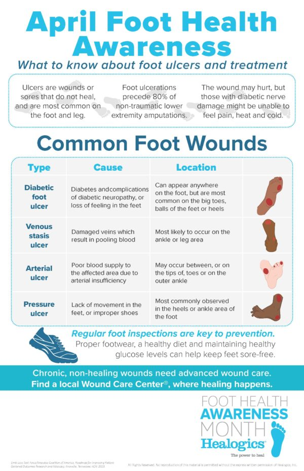 Drawing a Line from Foot Health to Chronic Wounds