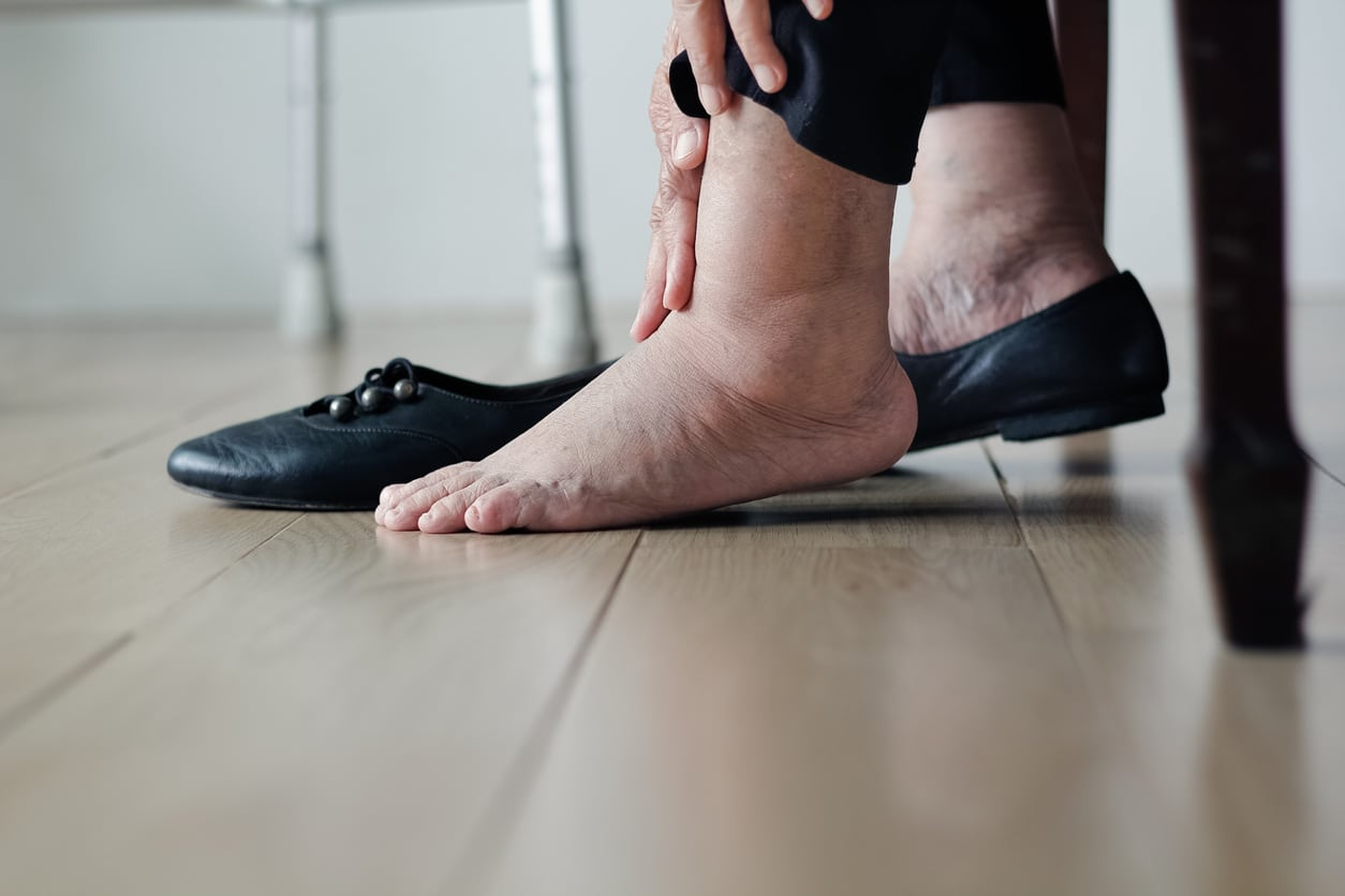 Controlling Swelling With Compression Stockings Healogics