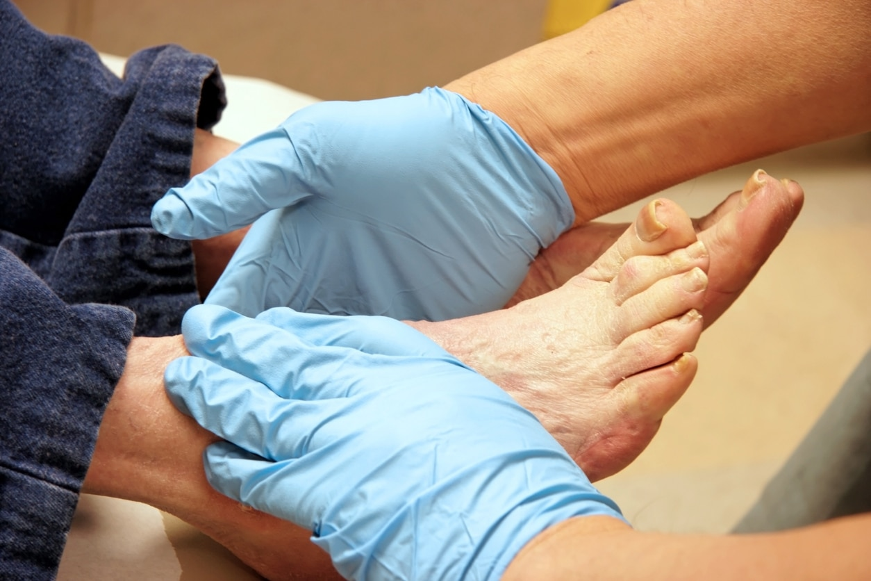 Diagnosis and Management of Diabetic Foot Complications