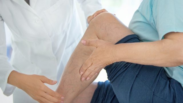 Peripheral Artery Disease and Related Ulcers