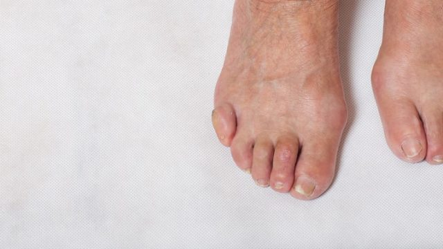 Join Us in Raising Awareness About <mark class='searchwp-highlight'>Foot Health</mark>