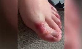 coronavirus foot symptom